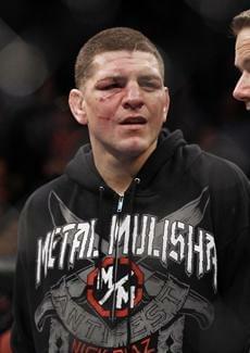 MMA Fighter Nick Diaz Tested Positive for Marijuana
